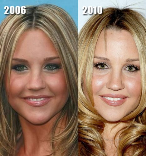 Has Amanda Bynes had cosmetic surgery? (image hosted by mydochub.com)