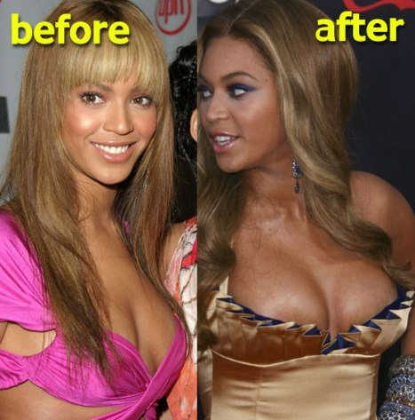 Beyonce Plastic Surgery Breast Implants