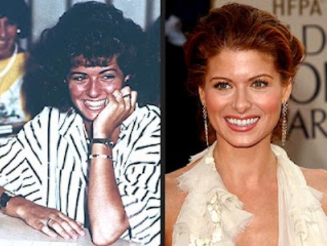 Debra Messing Plastic Surgery Before and After