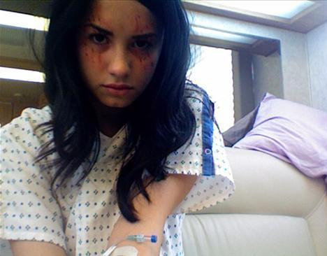"Demi Lovato Rehab for Drugs, Alcohol, ""Emotional and Physical Issues"