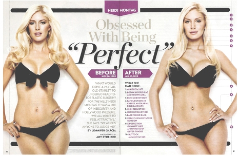 heidi montag plastic surgery. Heidi Montag Before and After