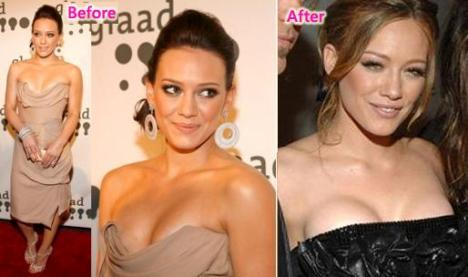 Hilary Duff Breast Implants Before and After