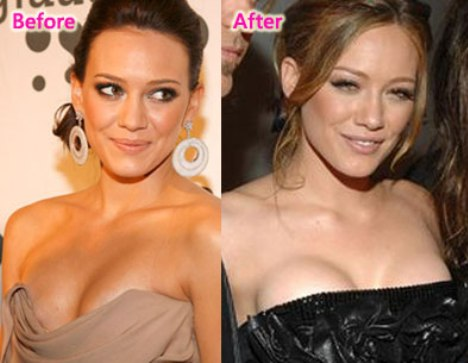 Hilary Duff Nose Job Before and After