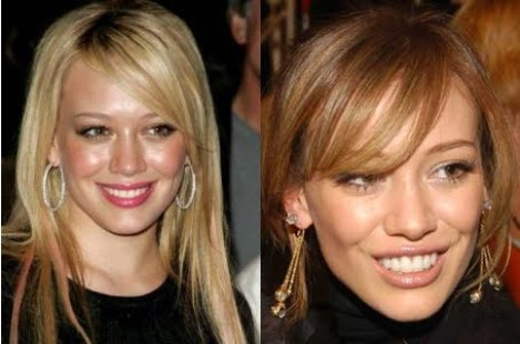 Hilary Duff Dental Implants