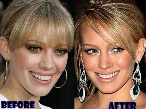 Hilary Duff Plastic Surgery Before and After