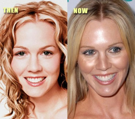 Jennie Garth Plastic Surgery Before and After