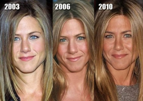 Jennifer Aniston before and after plastic surgery? (image hosted by mydochub.com)