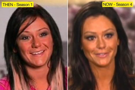 JWoww Plastic Surgery Face Before and After