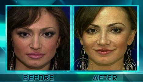 Karina Smirnoff Plastic Surgery Before and After