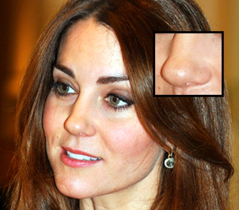 Kate Middleton Nose Jobs