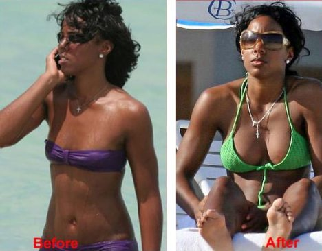 Kelly Rowland Breast Implants Before and After