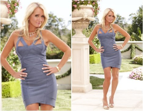 Kim Richards Plastic Surgery
