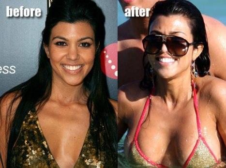 kourtney kardashian plastic surgery amp one life to live