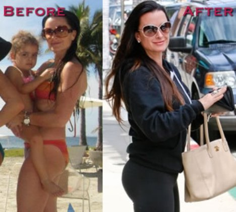 Kyle Richards Butt Augmentation