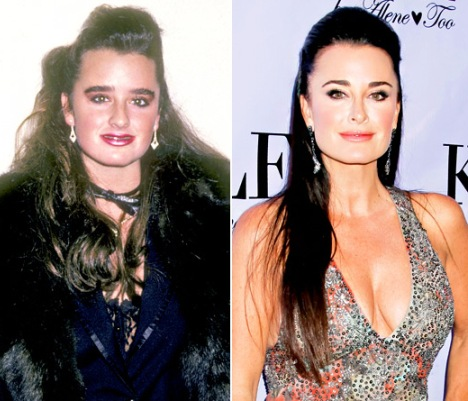 Kyle Richards Plastic Surgery Before and After