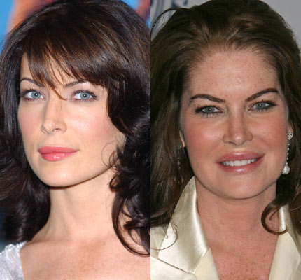 Lara Flynn Boyle before and after photos (image hosted by mydochub.com)