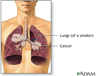 Lung Cancer Picture
