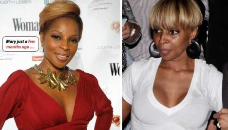 Mary J Blige Breast Implants