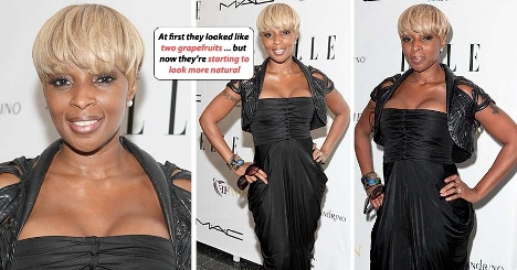 Mary J Blige Plastic Surgery