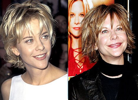 Meg Ryan Plastic Surgery Gone Bad