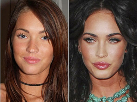 megan fox plastic surgery 2011 before and after. Megan Fox Plastic Surgery