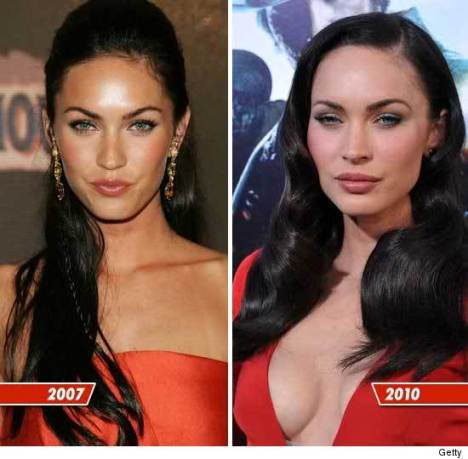 Megan Fox before and after plastic surgery (image hosted by mydochub.com)
