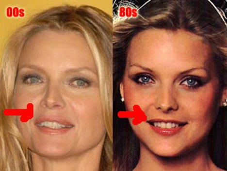 Michelle Pfeiffer Plastic Surgery Lips
