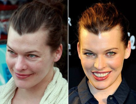 Milla Jovovich Plastic Surgery