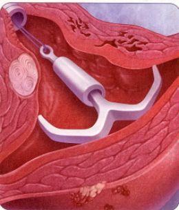 ... MyDocHub -Health Blog, Celebrity Plastic Surgery Gossip, Weight Loss