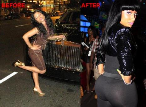 nicki minaj before and after plastic surgery. nicki minaj bum efore and