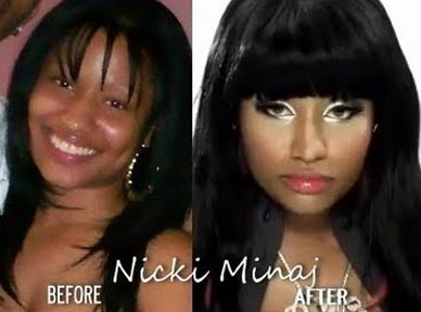Nicki Minaj before and after plastic surgery (images courtesy of http ...