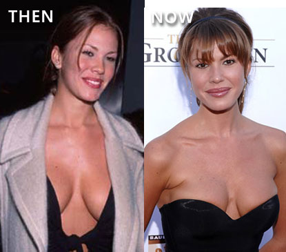 Nikki Cox Breast Implants Before and After