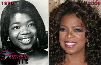 Oprah Winfrey Plastic Surgery Nose Job