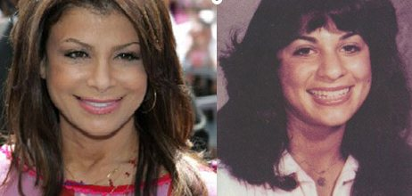 Paula Abdul Plastic Surgery Before and After