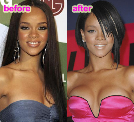 Plastic surgery for breast cancer 2014