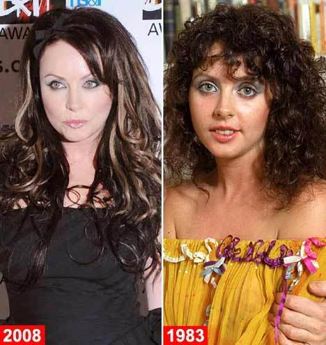 Sarah Brightman Plastic Surgery