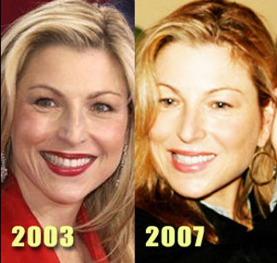 lady gaga before surgery pics. Tatum O#39;Neal Plastic Surgery