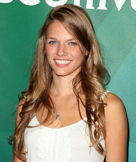 Tracy Spiridakos Plastic Surgery