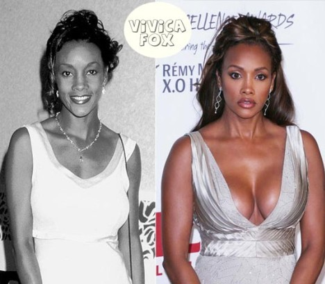 Vivica Fox Plastic Surgery Breast Implants