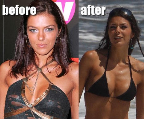 Adrianne Curry Breast Enlargement Archives