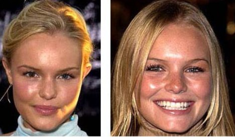 Kate Bosworth Plastic Surgery: All That Plastic at Only 28 ... Kate Bosworth Split