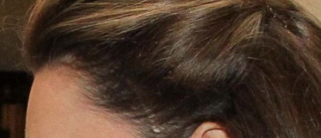 Kate Middleton Head Scar