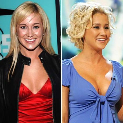 Kellie Pickler Breast Implants