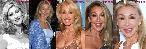 Linda Thompson Jenner Plastic Surgery Healthy Lifestyle