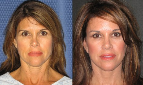 Buccal fat removal celebrity babies