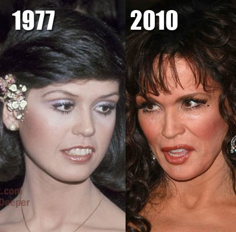 Marie Osmond Plastic Surgery and After Photo