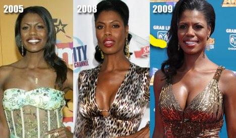 Omarosa Breast Implants
