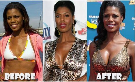 Omarosa Plastic Surgery Before and After