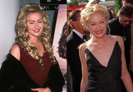 Portia de Rossi Plastic Surgery Before and After