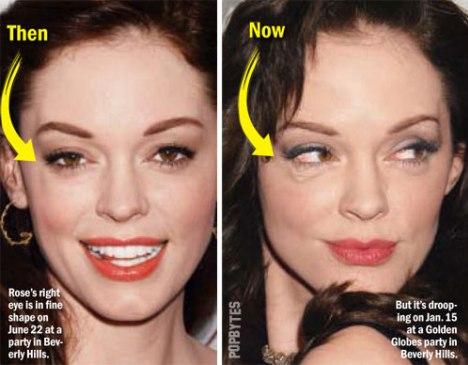 Rose McGowan Plastic Surgery Accident